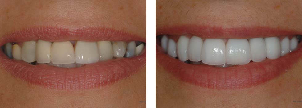 Porcelain dental crowns case study