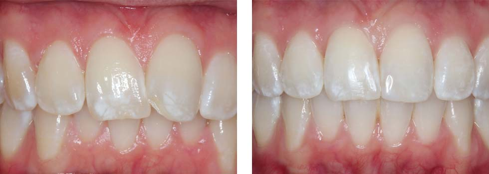 Teeth straightening case study