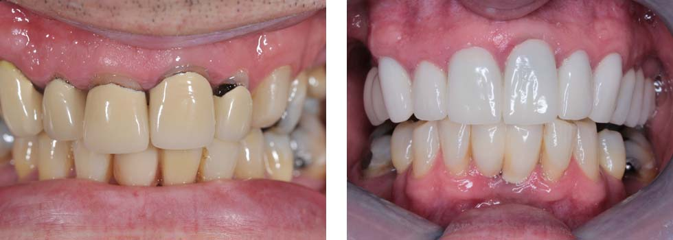 Dental implants and dental crowns case study