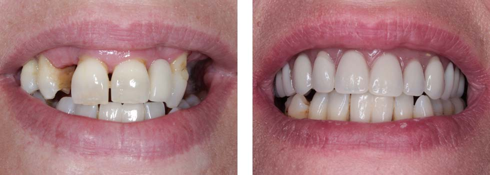Dental implants case study